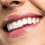 Can Cosmetic Dentistry Help You?