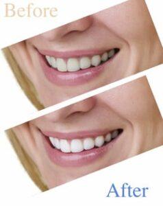 Veneers at Charlottesville Dentistry