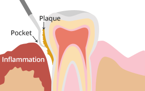 deep scale dental services in charlottesville