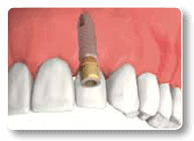 Dental Implants in Charlottesville Va