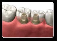 Implant Dentist Charlottesville