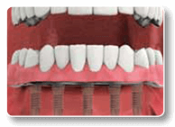 Charlottesville Implant Dentistry
