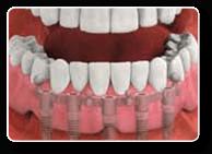 Charlottesville Va Dental Implants