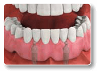 Charlottesville Dental Implants