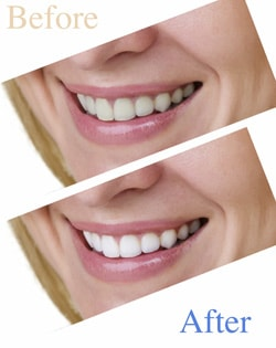 Teeth Whitening in Charlottesville